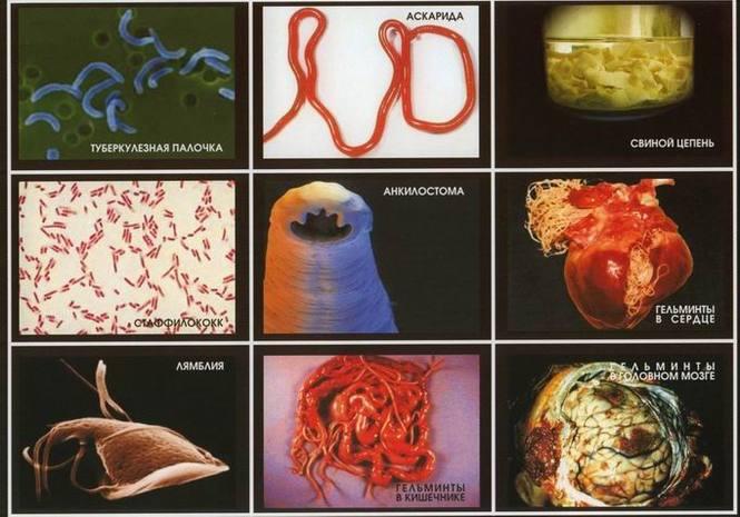 фото паразитов живущих в организме человека